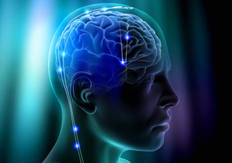 Neurocognicion
