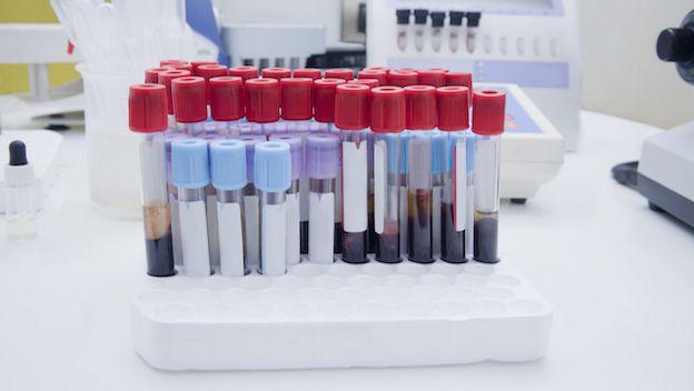 analisis-de-sangre-podria-predecir-sintomas-de-bipolaridad