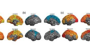 Las personas con trastorno bipolar tienen un 20% más riesgo de padecer cáncer, que puede reducirse con litio